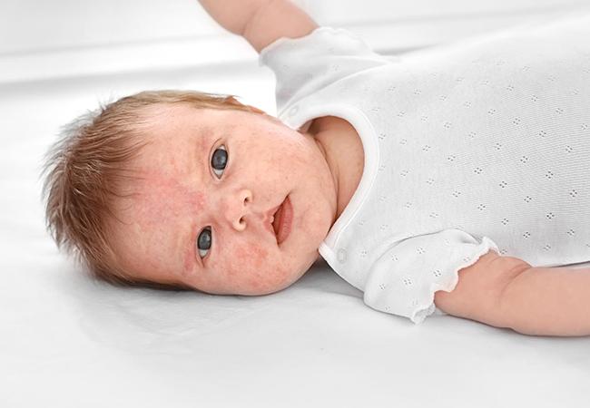 Bebeklerde İsilik Neden Olur?